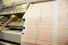 Fetal monitoring readout