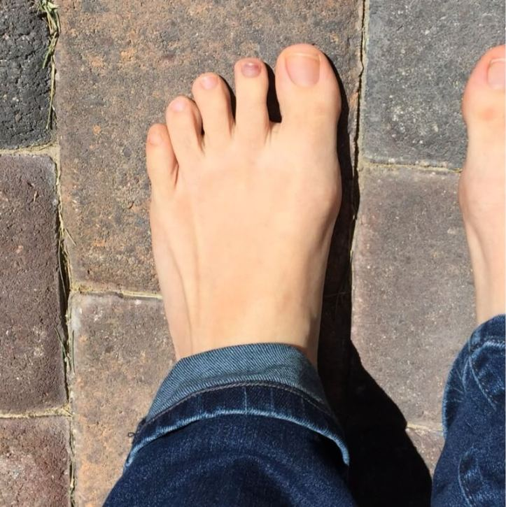 toenail-turning-black.jpg